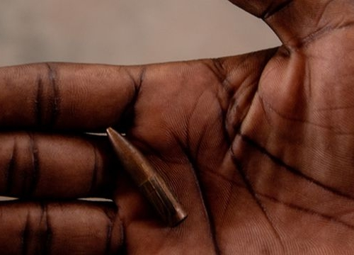 Bangui Hospital, CAR: The journey of a wounded woman at MSF'SICA hospital in Bangui Someone shows a bullet that landed on France's property in Damala, a neighbourhood parallel to the road where the fighting happened on 13 January 2021.